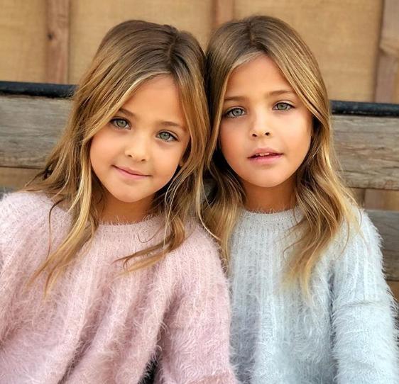 """Овие близначки се најубави на светот, но многумина """"удрија"""" по нивната мајка и се згрозени од овој детаљ (ФОТО)"""