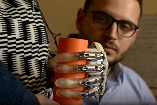 Бионичка рака која овозможува враќање на чувството на допир