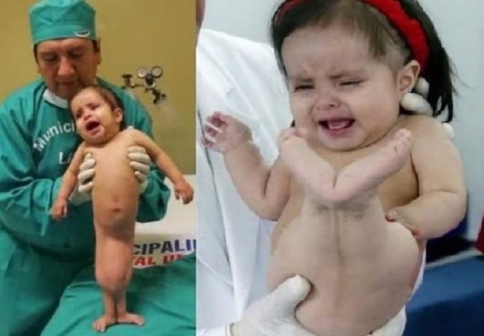 Беше родена како девојче-сирена и лекарите мислеа дека ќе умре: Како изгледа денес малата Милагрос? (ВИДЕО)