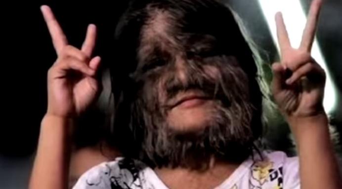 ФОТО: Ја нарекуваа девојче – врколак: Кога ги острани влакната од лицето следуваше шок