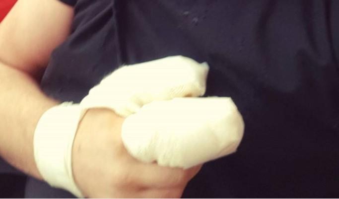 Познатиот српски пејач сериозно повреден- разнесени му се прстите од петарда (ФОТО)