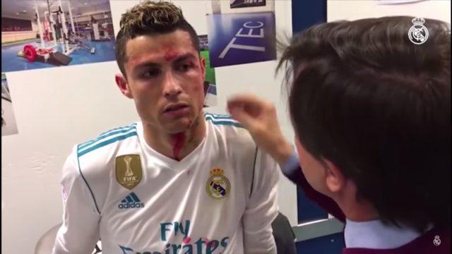 ВИДЕО: Роналдо облеан во крв, доктори му ја сошија раната на лицето