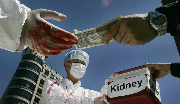 Срцето држи цена: Еве колку чинат човечките органи на пазарот