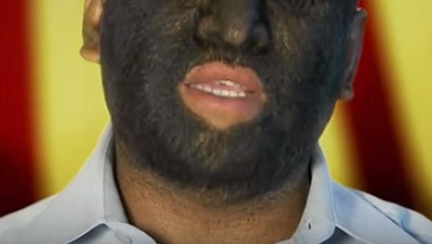 Запознајте го највлакнестиот човек: Ретко генетско пореметување му донесе светска слава (ФОТО+ВИДЕО)