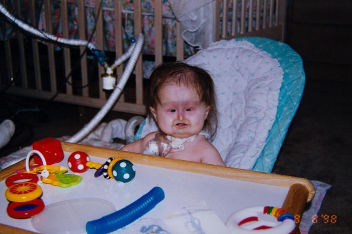 Кога се родила со изгледот ги шокирала лекарите: Боледува од редок синдром, вака изгледа 20 години подоцна (ФОТО)