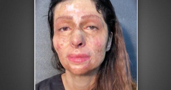 Нејзиното лице е со рани и лузни по тешка сообраќајка, кога ја нашминкаа ги расплака сите со емотивна реакција (ВИДЕО)