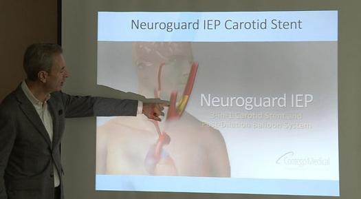 Применета нова метода за превенција од мозочен удар