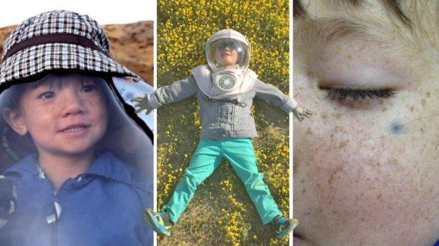 Ова слатко момче е едно во милиони: Има страшна алергија на сонце, вака мора да се заштитува (ФОТО)