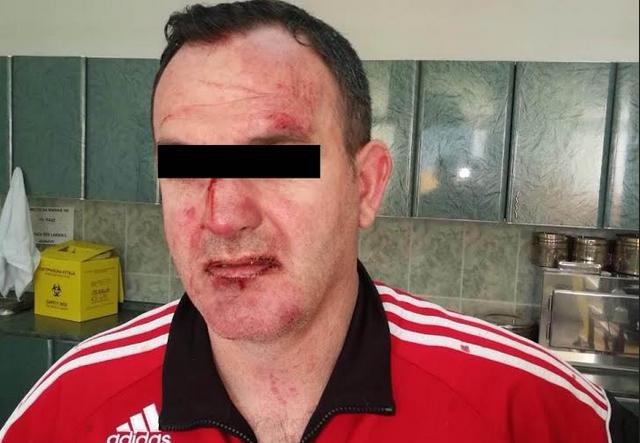 Алијансата за Албанците се огласи по бруталното претепување на професори во Гостивар