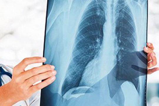 Тумори на дишното стебло од понеделник на пулмологија ќе се отстрануваат без хируршки зафат