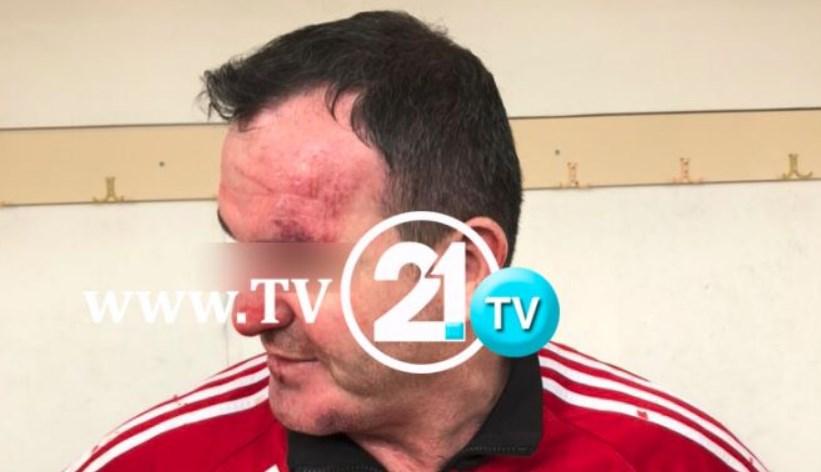 ФОТО: Професори од Гостивар нападнати со метален боксирач