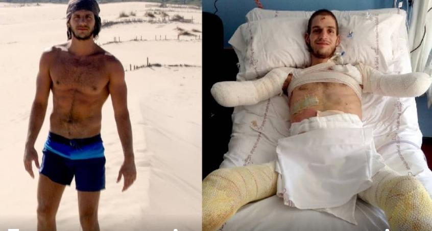 Погрешна дијагноза ќе го чинеше живот: Младо момче остана без раце и нозе (ФОТО)