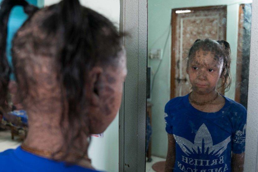 Ја викаат девојчето-змија, а таа многу страда: Ако излезе на сонце нејзината кожа крвари (ВИДЕО)