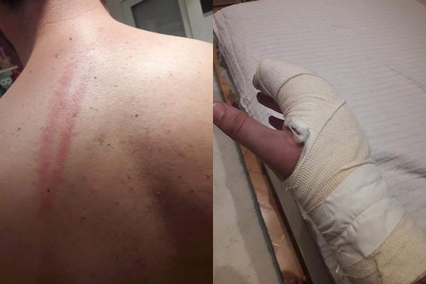 """Сведок од пред Собранието: Резултатот од """"дружбата"""" со полицијата се две скршеници на коски на плешка и дланка (ФОТО)"""