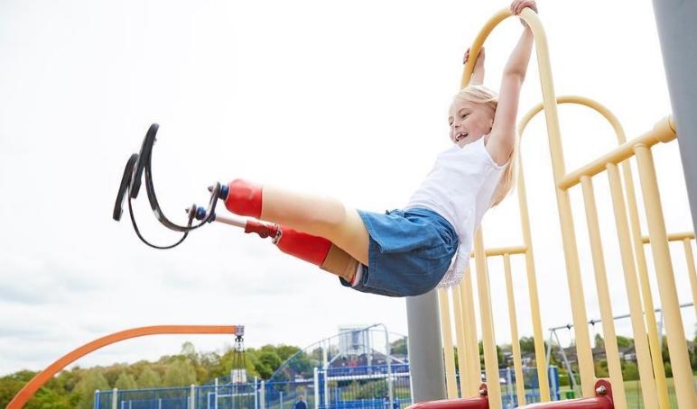 Погледнете зошто ова девојче е голем херој: Двете нејзини нозе се ампутирани, а таа си го оствари својот најголем сон