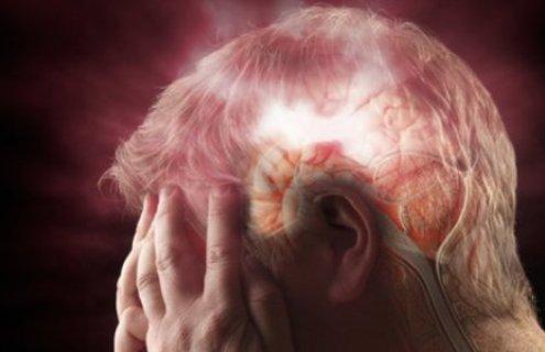 Внимавајте: Ова се најчестите причини за мозочен удар