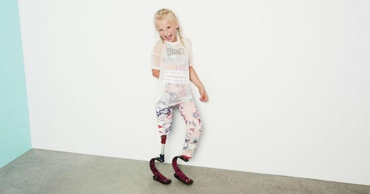 ОВА ДЕВОЈЧЕ Е ХЕРОЈ: Кога била бебе останала без стапала, но денес си го живее својот сон и стана ѕвезда (ФОТО)