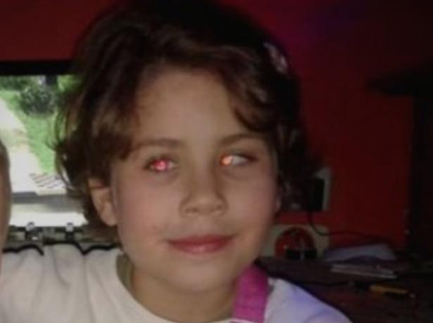 Малата Катерина чека наша помош: Потребни се 5.000 евра за девојчето да гледа како другите деца