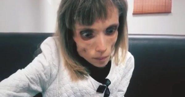 Се соочила со смртта, а докторот ја пратил да глуми во хорор филм: Оваа девојка има само 17 килограми (ФОТО)