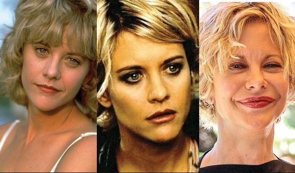 Беше најсимпатичната русокоса во Холивуд, а потоа се уништи со пластичните операции (ФОТО)