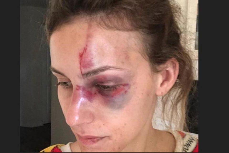 Момчето ја претепало поради фотографија на Инстаграм: Богатиот татин син е пуштен веднаш од затвор (ФОТО)