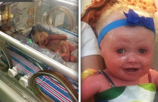 Емотивно: За да преживее, ова бебе мора да се тушира на секои два часа (ВИДЕО)