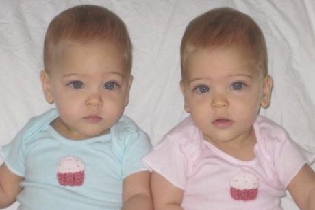 Пред 8 години се родија најубавите близначки на светот, погледнете како изгледаат денес (ФОТО)