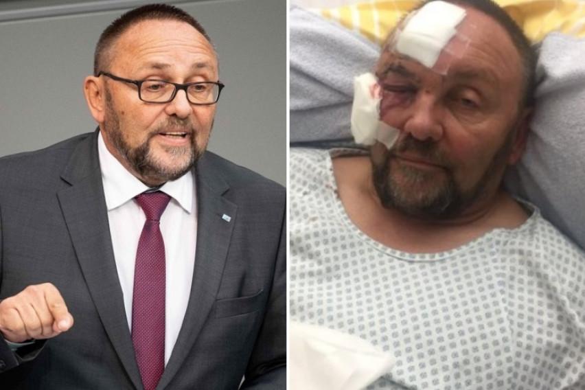 Неочекуван пресврт во случајот со претепаниот политичар: Полицијата ги прегледала надзорните камери и открила дека функционерот лажел