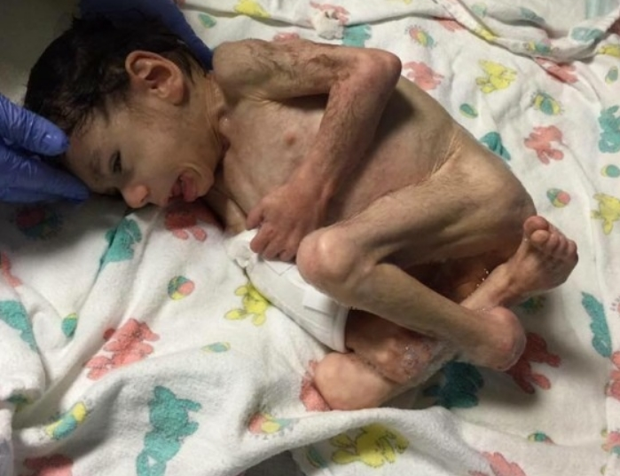 Плачевме за детето кое поради изгладнетост беше на работ на смртта: Денес е мал буцко кој ќе ви го стопли срцето (ФОТО)