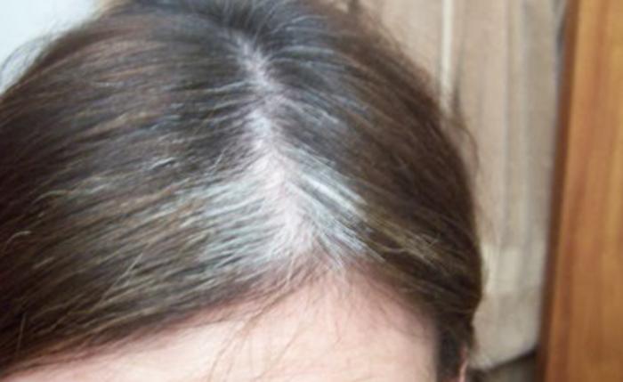 Вашата коса е огледало на вашето здравје, ако го забележите ова, треба да посетите доктор