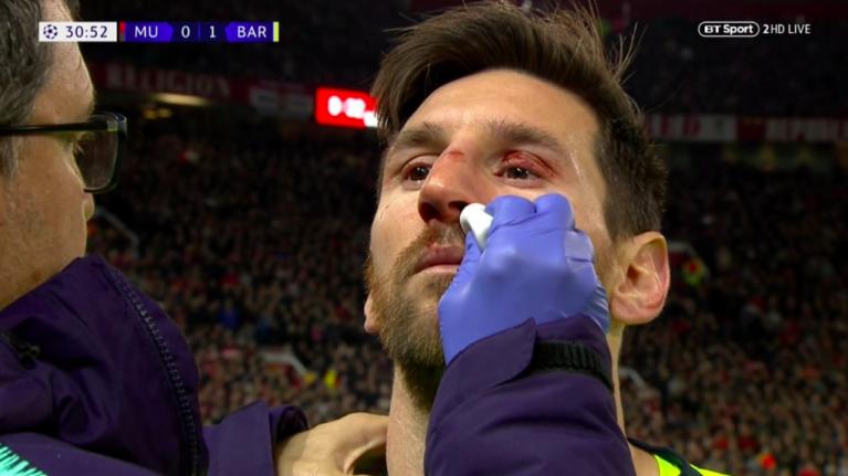 Поради повреда на носот Меси надвор од теренот следните неколку дена