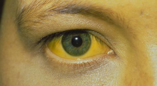 Епидемија на заразна жолтица во училиште за деца со попреченост во Ново Село