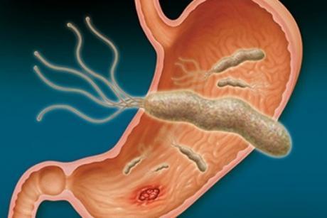 Едноставно е, а не сме го знаеле- природен начин за остранување на бактерии од желудникот