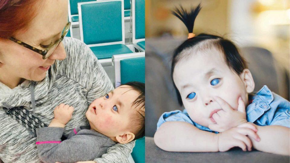 Таа е преубава и покрај тоа што изгледа поинаку: Девојчето со сребрени очи нема веќе болка