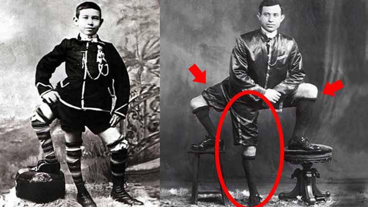 Човекот со три нозе и два полови органи! (ВИДЕО)