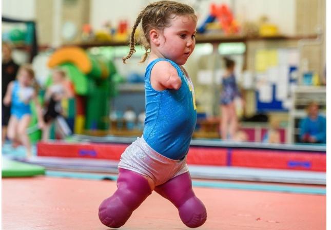Малата храбра хероина: Ова девојче нема екстремитети, но нема да верувате што може да прави (ВИДЕО)