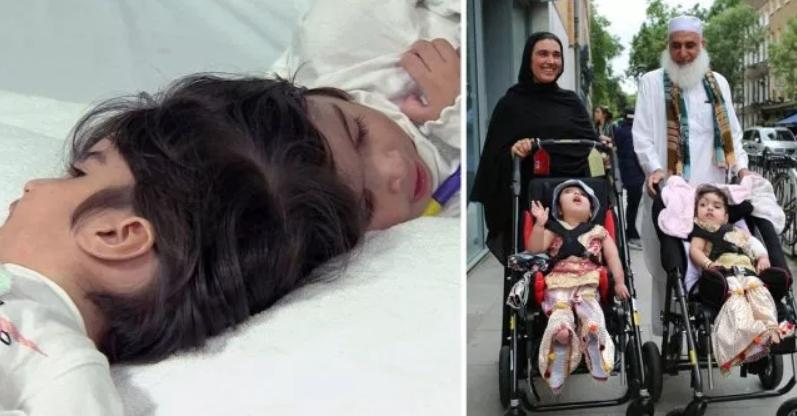 Сестричките беа родени со споени глави: Денес се две среќни дечиња, раздвоени сијамските близначки (ФОТО)