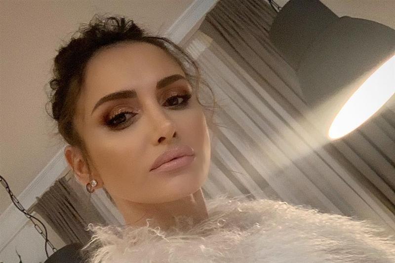 Емина Јаховиќ призна дека направила само една естетска операција на себе- откако го откри местото фановите не и поверуваа (ФОТО)