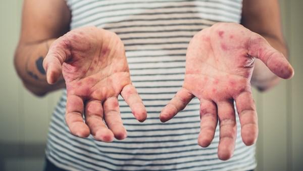 Нема новорегистрирани случаи со мали сипаници, се уште е во тек епидемија