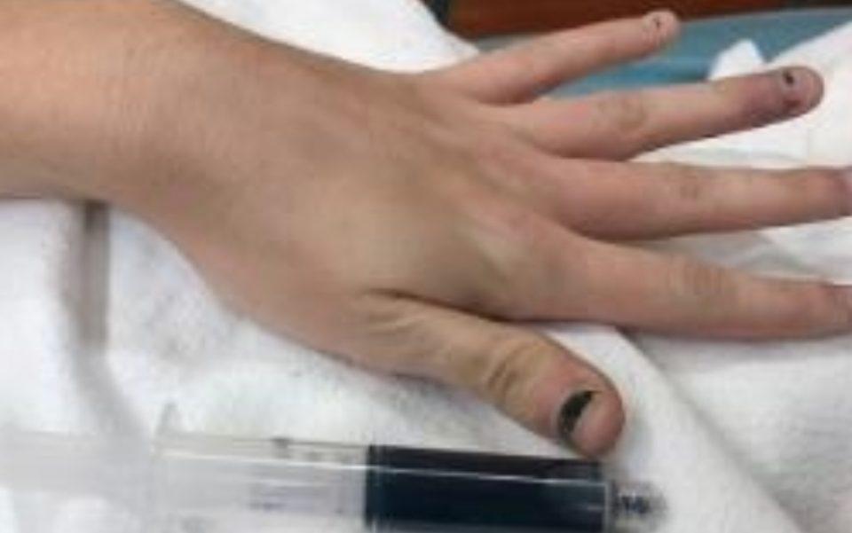 Не се чувствувала добро, па отишла на доктор: Кога ѝ извадиле крв, докторите останале шокирани