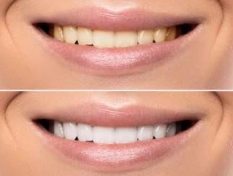 Како да направите професионално белеење на забите во само една сеанса?