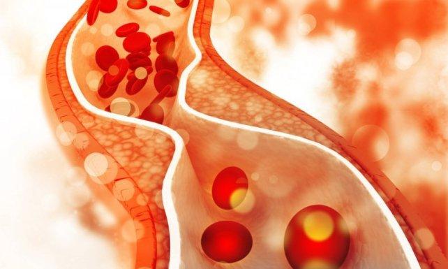 Вишокот маснотии и холестерол го следат човекот уште од древноста