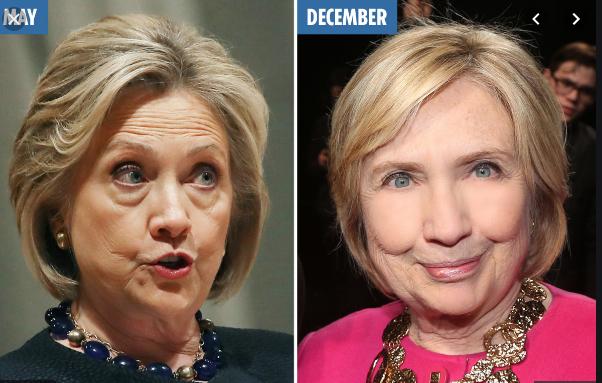 ФОТО: Хилари Клинтон направила пластични операции, резултатот е морничав