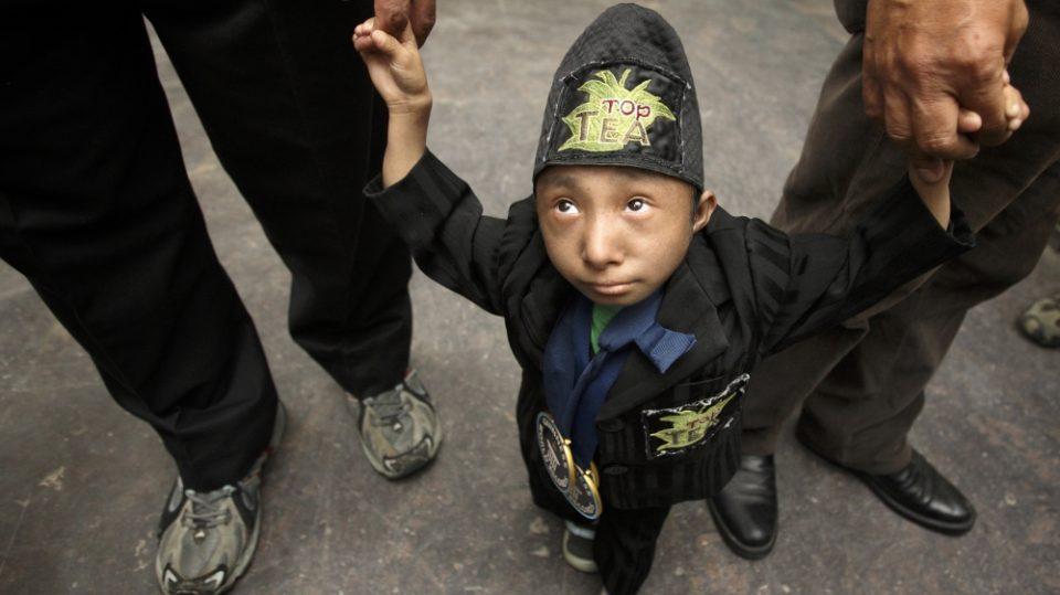 Имаше само 27 години: Почина најмалиот човек на светот (ФОТО)