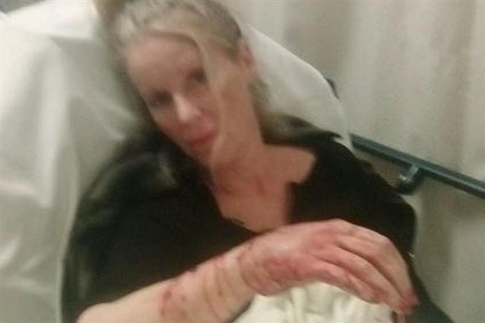 Познатата актерка не личи на себе: Ја нападнаа домашните кучиња, а докторите морале да и вградат и шина во раката (ВОЗНЕМИРУВАЧКО ФОТО)