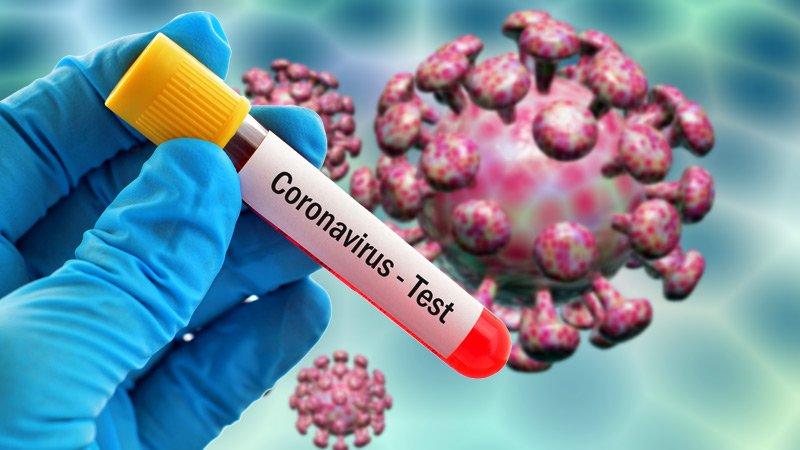 Коронавирус и на Кипар: Потврдени првите случаи- заразени се доктор и 25.годишно момче