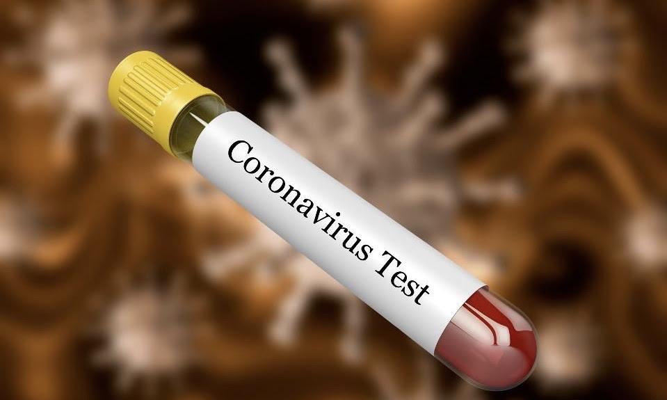 Состојба со Ковид-19 во светот до 20 часот: Во САД бројката на заразени надмина 60.000, а околу 800 лица починале