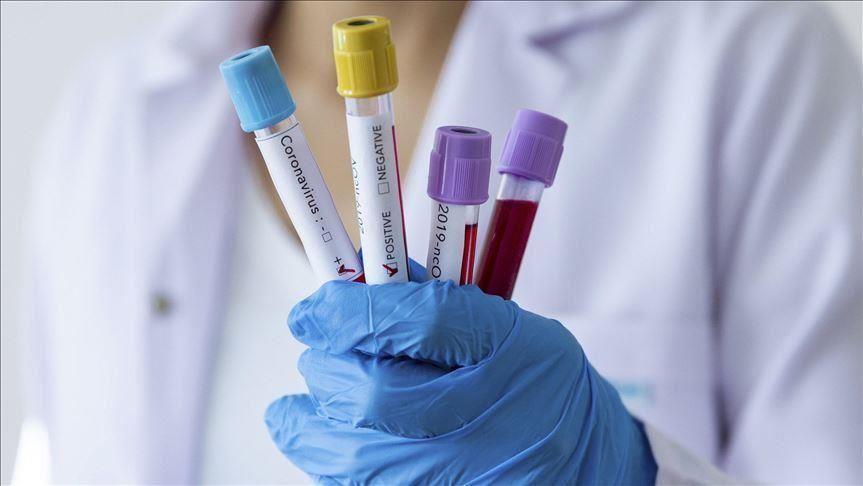 Досегашната состојбата со коронавирусот во Македонија: Најмногу заразени во Скопје, во општина Карпош