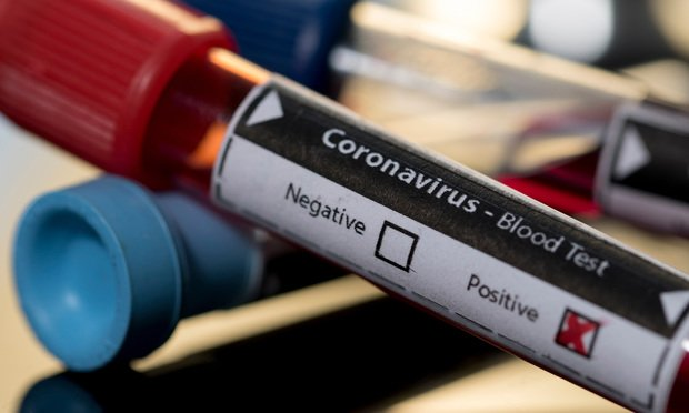Уште една жртва од коронавирусот во Словенија