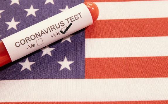 Биркс: Во САД може да се заразат од 1.6 до 2.2 милиона лица